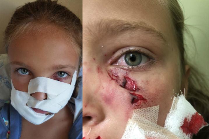 Неподалеку от Минска такса «разорвала» ребенку лицо. Кто виноват?