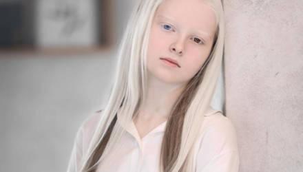Эта чеченская школьница удивляет людей красотой — в ней сошлись две редкие особенности