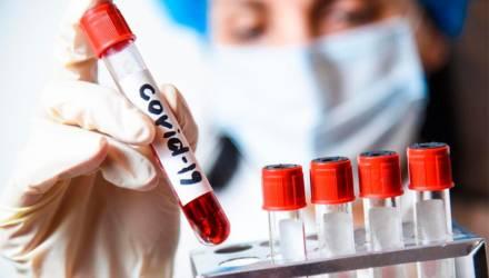 В Беларуси на 22 июня выявлено 59 023 случая коронавируса, умер 351 пациент